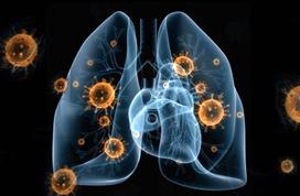 31省份新冠肺炎累计确诊76288例 死亡2345例